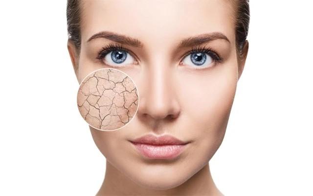Skin Care In Winter-